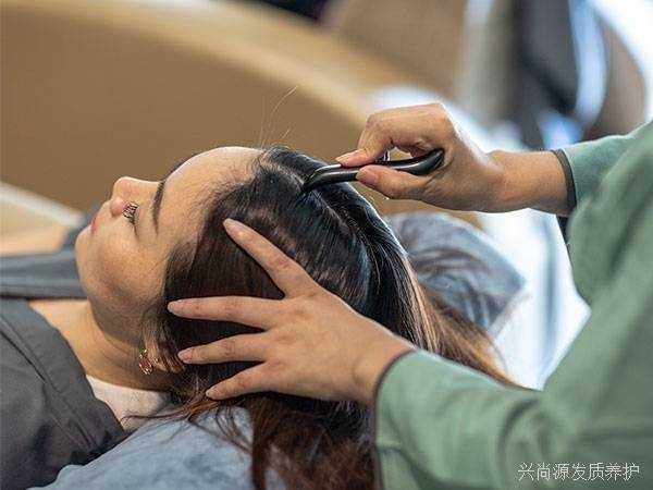 脱发原因有哪些?