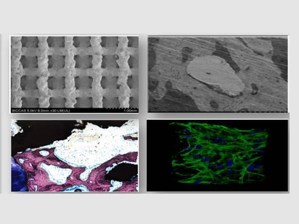 3D打印技术正式开启人工椎体时代