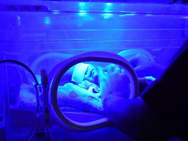 新生儿日间蓝光照射治疗  帮助宝宝快速退黄